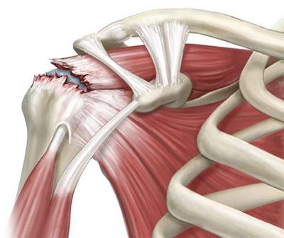 肩腱板断裂