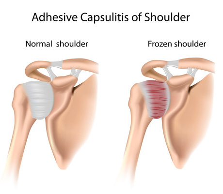 肩痛の原因