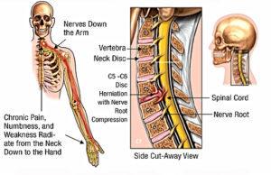 頚椎椎間板ヘルニアの症状