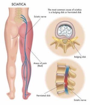 腰椎椎間板ヘルニアの治療