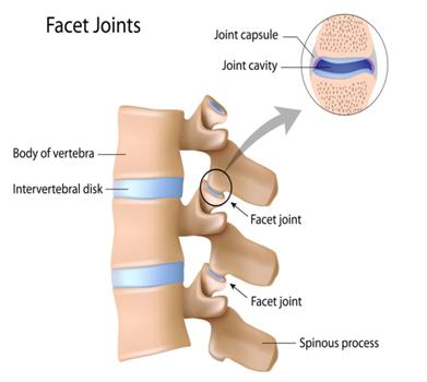 急性腰痛,ぎっくり腰の治療